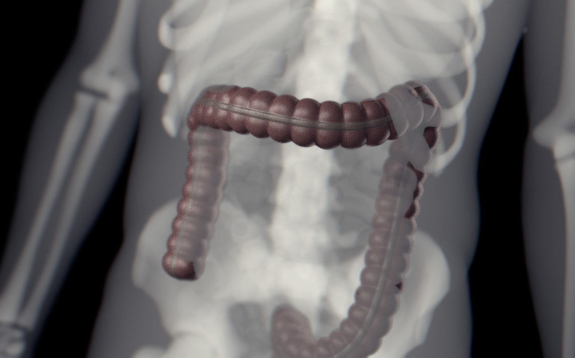 An x-ray of an abdomen showing bones and the large intestine in dark red