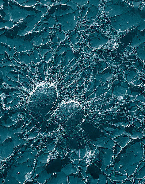Bacterial cells of Staphylococcus aureus, popularly known as Golden Staph.