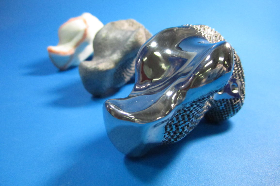 3D printed titanium heel implant