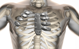 Graphic of a titanium sternum superimposed on a human skeleton.