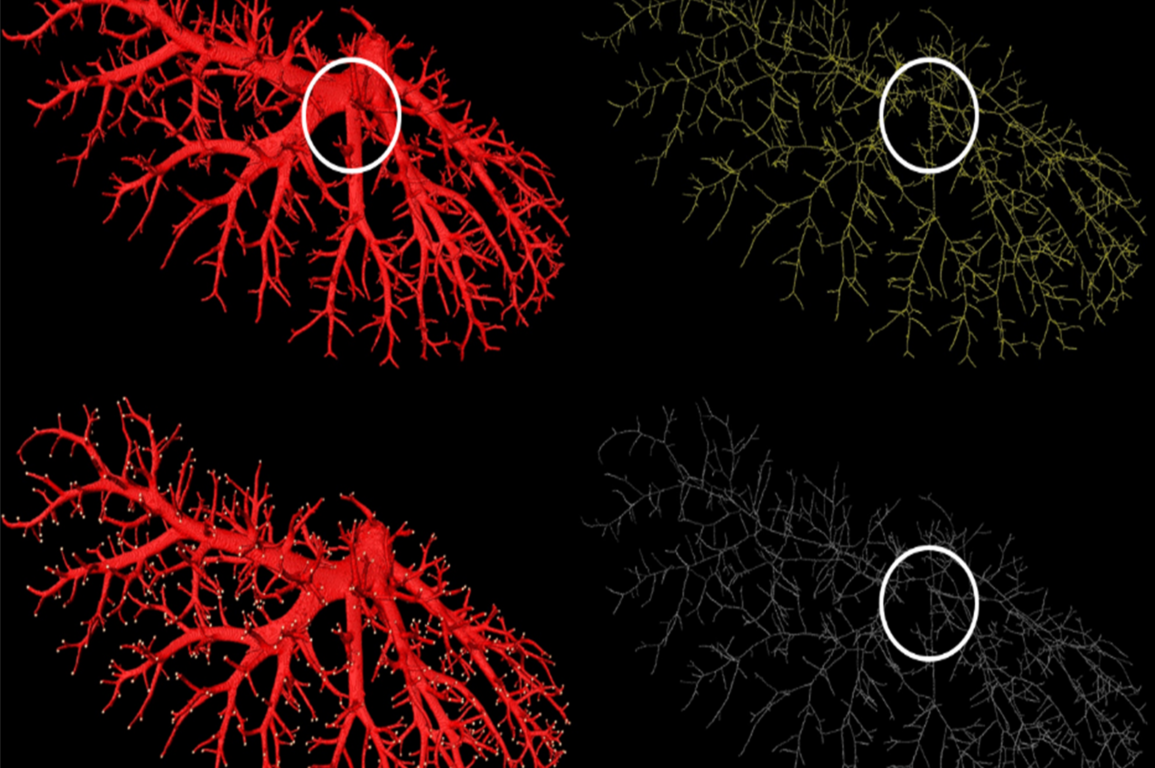 Dadong et al. blood vessel branching algorithm