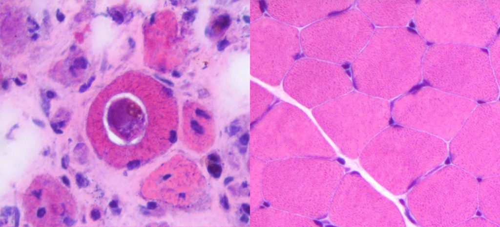 (Left) A section of muscle cells under a microscope showing an infecting H. perplexum parasite—the round structure with the white halo inside the larger mid-pink structure of the muscle cell. The patient has significant muscle deterioration—most of the dark blue/purple spots are muscle cell nuclei and in a healthy muscle (right), would have a full, muscle cells around them.