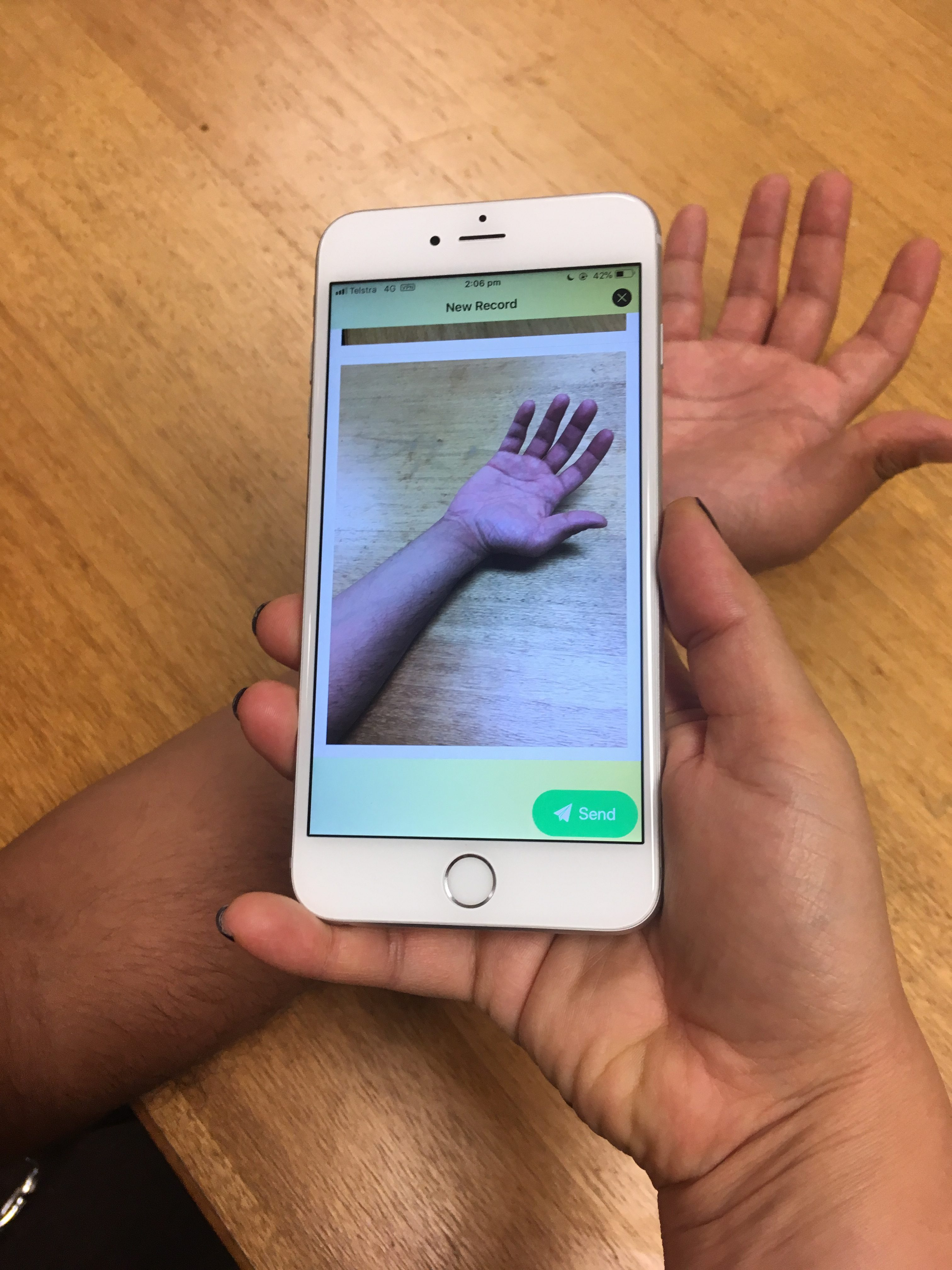 A photo of the MICE app in action: a mobile phone is used to take a photo of a person's burned hand.