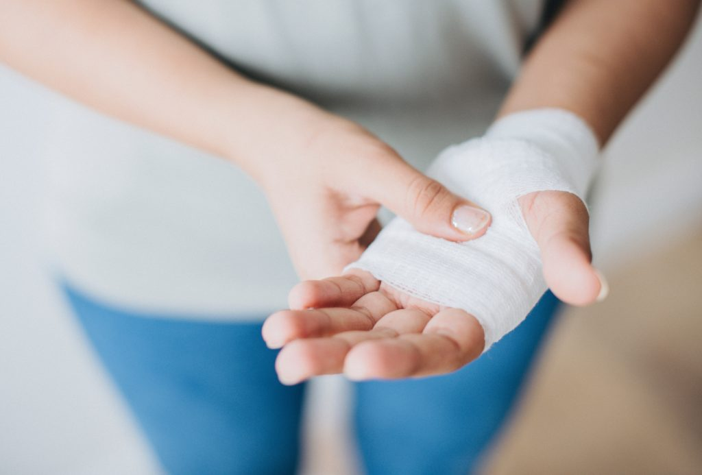 A burns victim holds their bandaged hand.