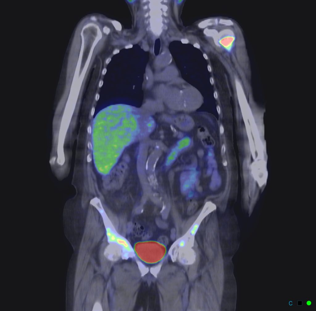 : A PET scan of a human body, showing glowing areas indicating cancer cells.