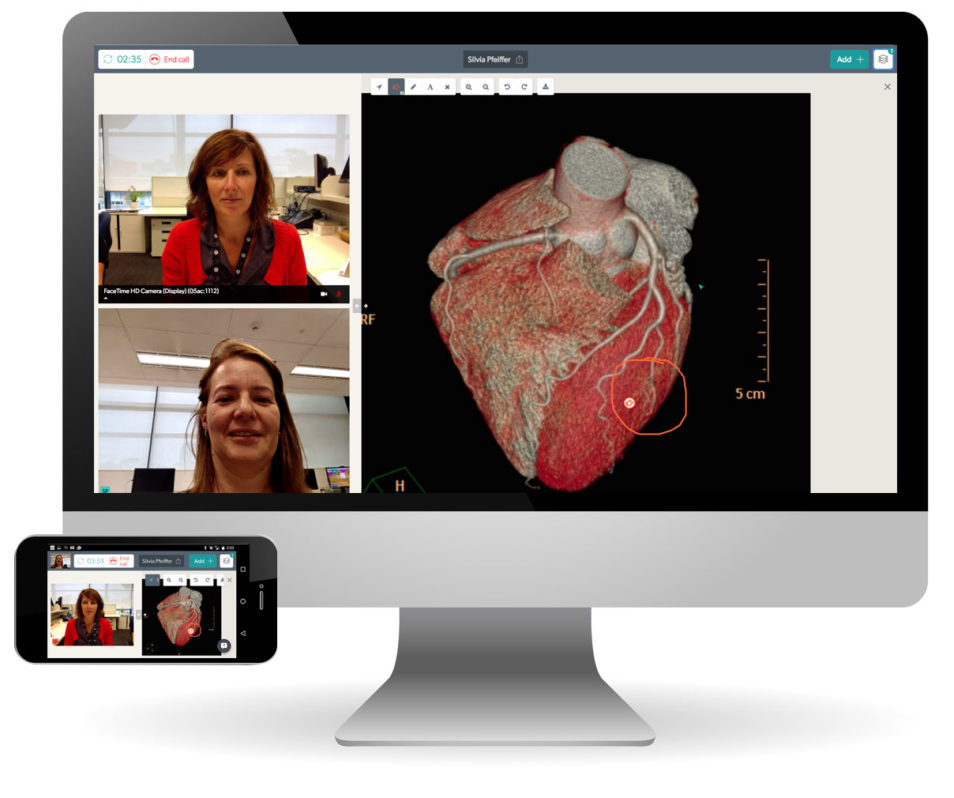 A computer screen showing Coviu with two people talking via webcam and a diagram of a heart.