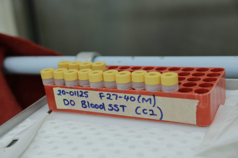 Vials with a yellow lid in a orange tray. It's titled DO Blood SST (c2)