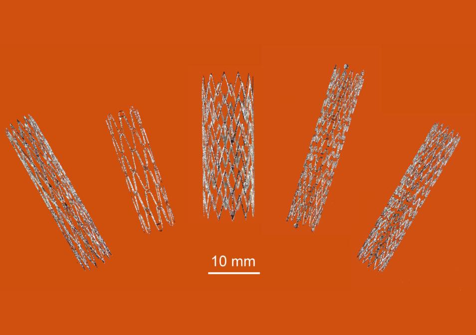 5 nitinol mesh stents