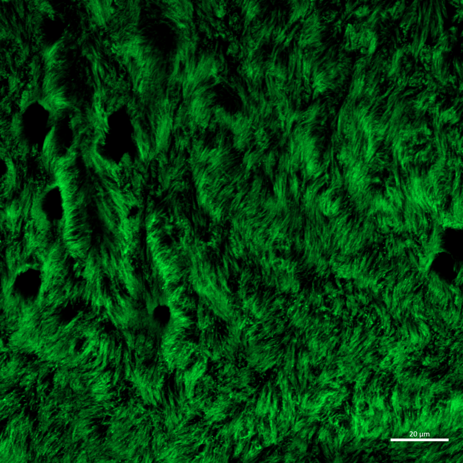Lab-grown airway cells (cilia) stained green.