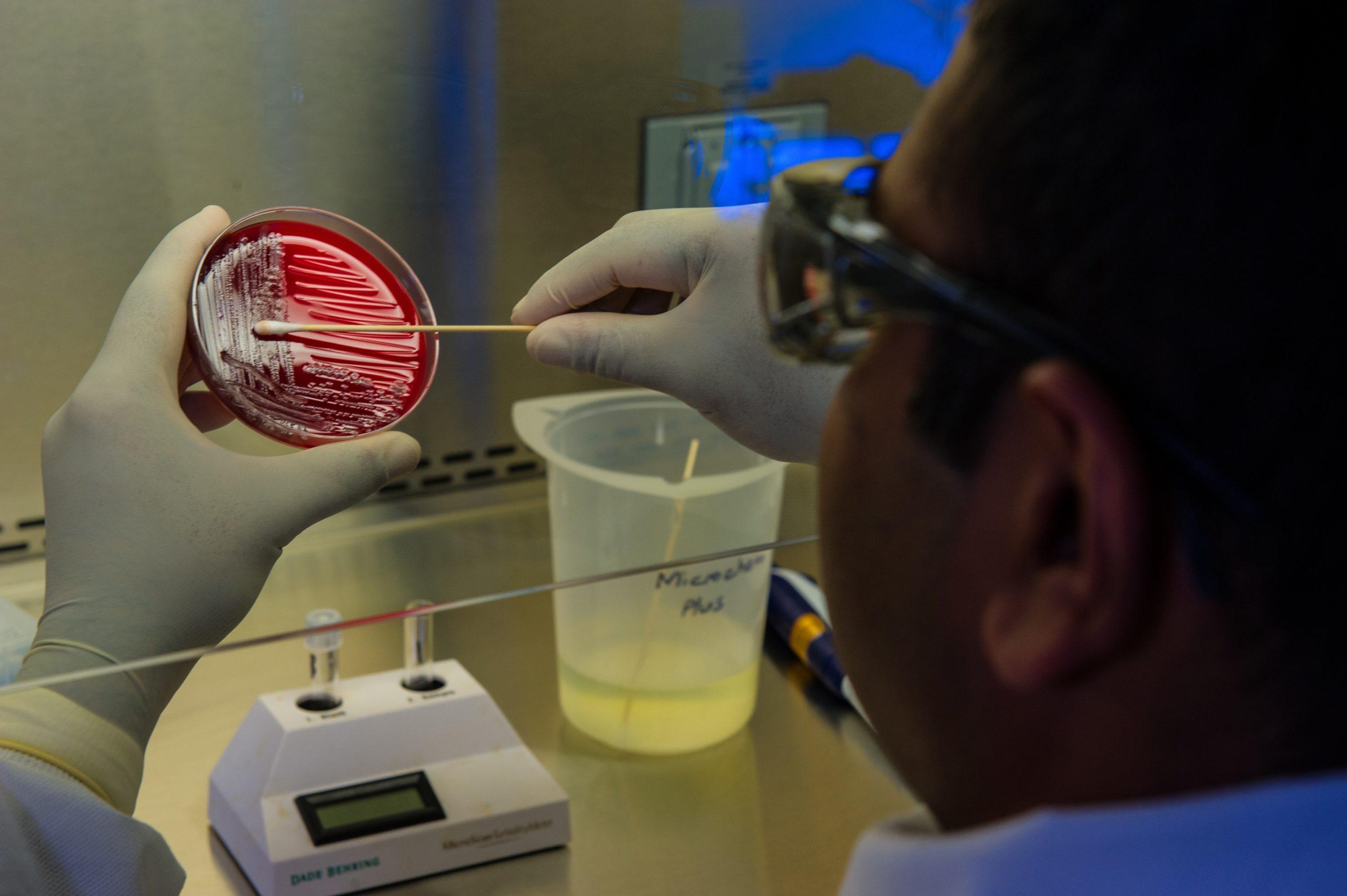 Man testing bacteria on an agar plate